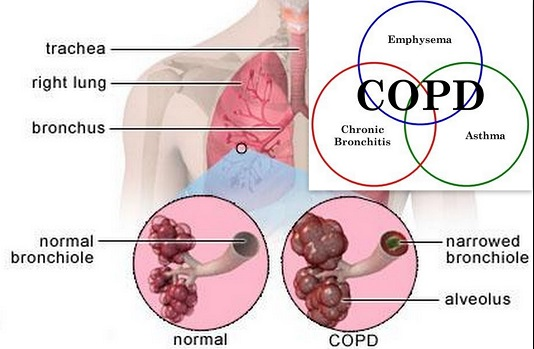 copd1a