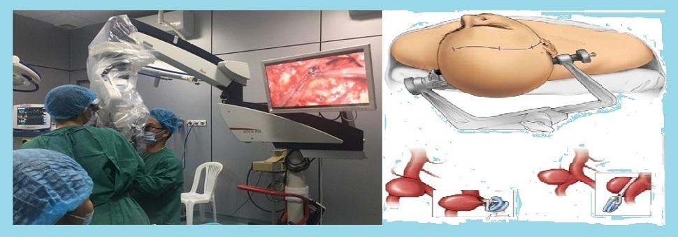Triển khai kỹ thuật caoPhẫu thuật kẹp cổ túi phình mạch não vỡ bằng vi phẫu